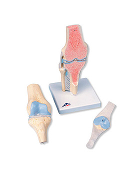 Gelenkschnitt-Modell des Knies, 3-teilig, 3B Scientific, medishop.de