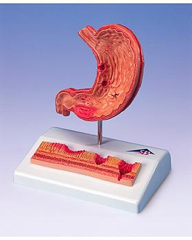 Magen mit Magengeschwüren, 3B Scientific, medishop.de