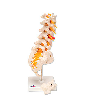 Lendenwirbelsäule mit dorsolateralem Bandscheibenvorfall, 3B Scientific, medishop.de
