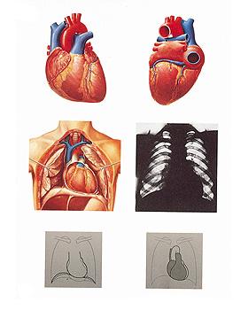 Das Herz I, Anatomie, Wandkarte 84 x 118cm, mit Holzbestäbung, 3B Scientific, medishop.de