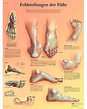 Fehlstellungen der Füße, Lehrtafel, 3B Scientific, medishop.de