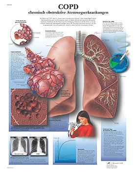 COPD - Chronisch obstruktive Atemwegs- erkrankungen, Lehrtafel, 3B Scientific, medishop.de