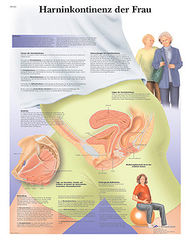 Harninkontinenz der Frau, Lehrtafel, 3B Scientific, medishop.de