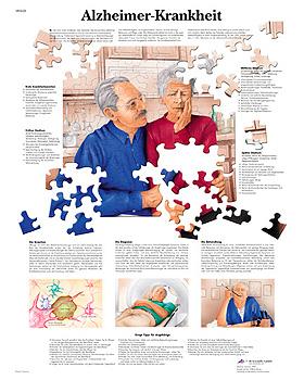 Alzheimer-Krankheit, Lehrtafel, 3B Scientific, medishop.de