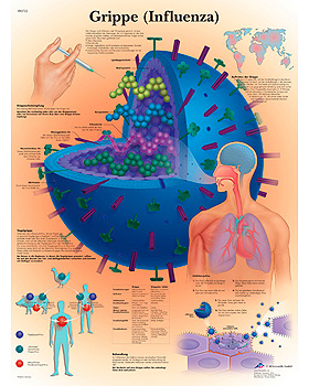 Grippe, Lehrtafel, 3B Scientific, medishop.de
