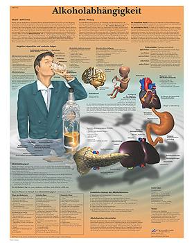 Alkoholabhängigkeit, Lehrtafel, 3B Scientific, medishop.de