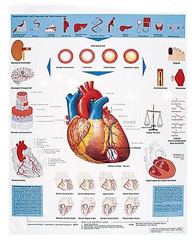 Herzinfarkt, Lehrtafel 50 x 67cm, 3B Scientific, medishop.de