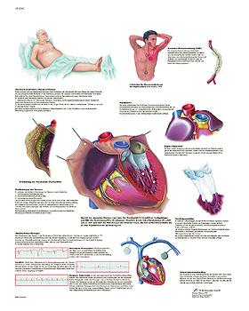 Häufige Herzerkrankungen, Lehrtafel 50 x 67cm, 3B Scientific, medishop.de