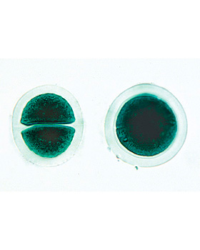 Algen (Algae), 30 Stück, 3B Scientific, medishop.de