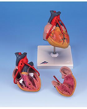 Klassik-Herz mit Bypass, 2-teilig, 3B Scientific, medishop.de