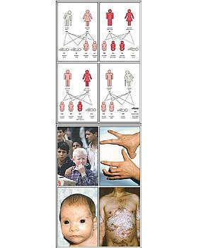 Die Vererbung beim Menschen (Humangenetik) Band I, 32 Stück, 3B Scientific, medishop.de