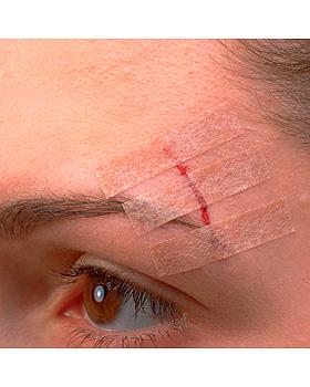 3M Steri-Strip Blendtone 12 x 50 mm, Wundverschlussstreifen (50 x 6 Str.), 3M Medica, medishop.de