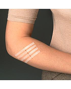 3M Steri-Strip Wundverschlussstreifen 3 x 75 mm (12 x 5 Str.) #1540NP-12#, 3M Medica, medishop.de