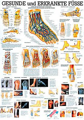anat. Lehrtafel: Gesunde und erkrankte Füße 70 x 100 cm, Papier, Rüdiger Anatomie, medishop.de