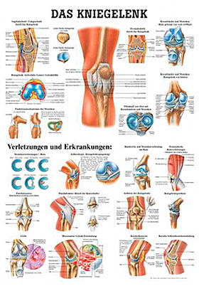 anat. Lehrtafel: Das Kniegelenk 70 x 100 cm, Papier, Rüdiger Anatomie, medishop.de