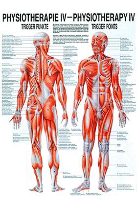 anat. Poster: Physiotherapie Triggerpunkte, 50 x 70 cm, Papier, Rüdiger Anatomie, medishop.de