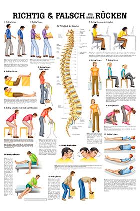 anat. Lehrtafel: Richtig & Falsch für Ihren Rücken 70 x 100 cm, laminiert, Rüdiger Anatomie, medishop.de