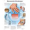 Anatomische Lehrtafeln 50 x 67cm günstig kaufen